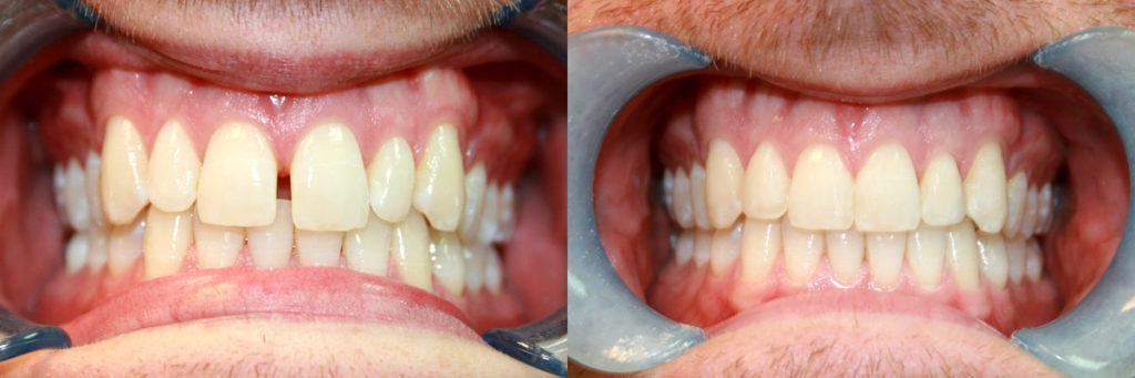 Diastema closure with fixed brace