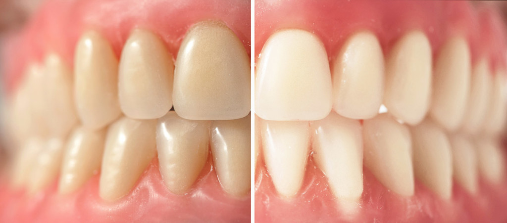 teeth-whitening1