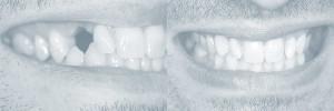 Smiles Gallery